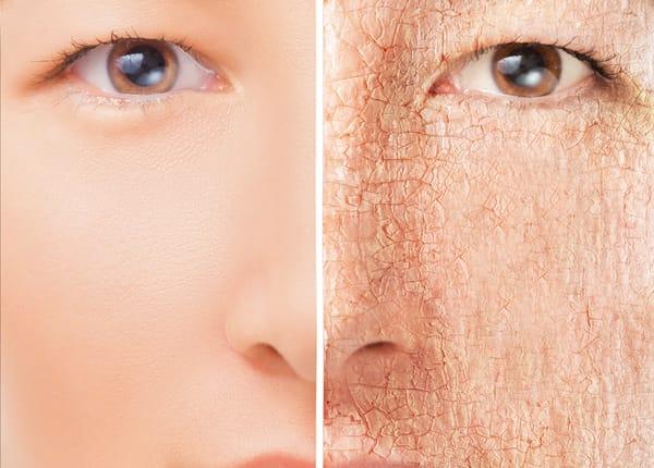18 Produk Skincare Terbaik Untuk Kulit Kering Update 2020
