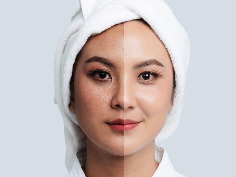 10 Produk Skincare Yang Mengandung Arbutin Terbaik 2020